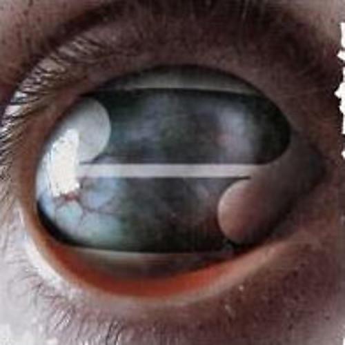 Alliance Filter - Crazy Eyes thumbnail